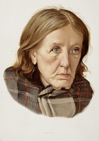만성 치매를 앓는 여성, J. Williamson 1890 - [wellcomeimages.org 소장] 제공
